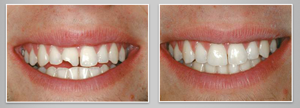 Before after image case7 at Dr. Neu