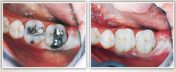 Before after image case4 at Dr. Neu