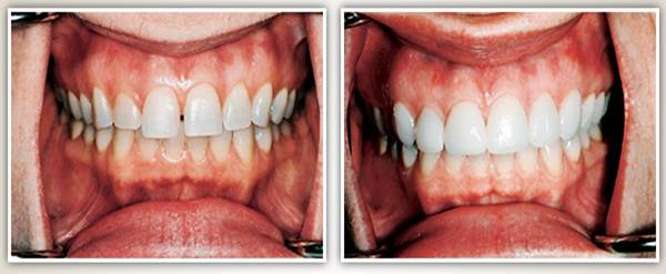 Before after image case6 at Dr. Neu