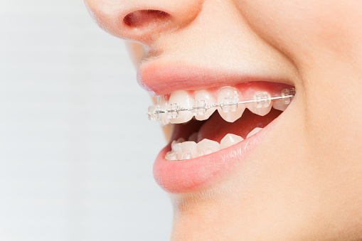 What to Expect When Getting Braces?