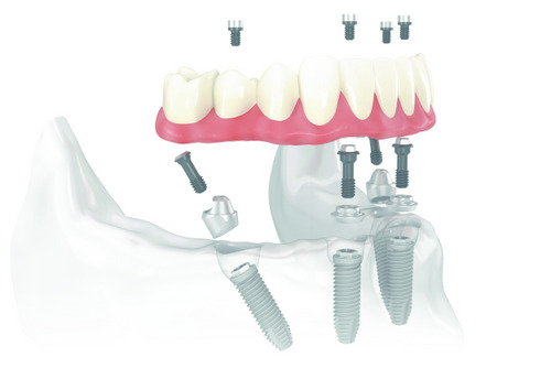 All on 4 Dental Implants at Neu Family Dental