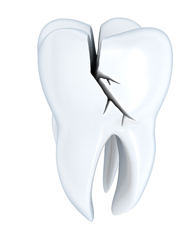Broken Teeth Increase the Potential for Inflammation in Your Body