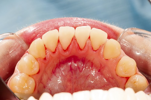 First Three Signs of Gum Disease to Look For